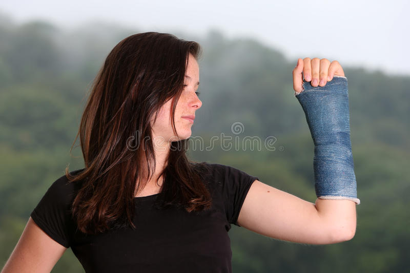 Girl broken arm. Girl with a broken wrist in a cast royalty free stock photography
