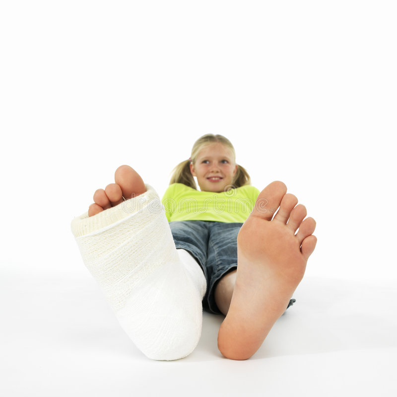 Girl with a broken leg royalty free stock images