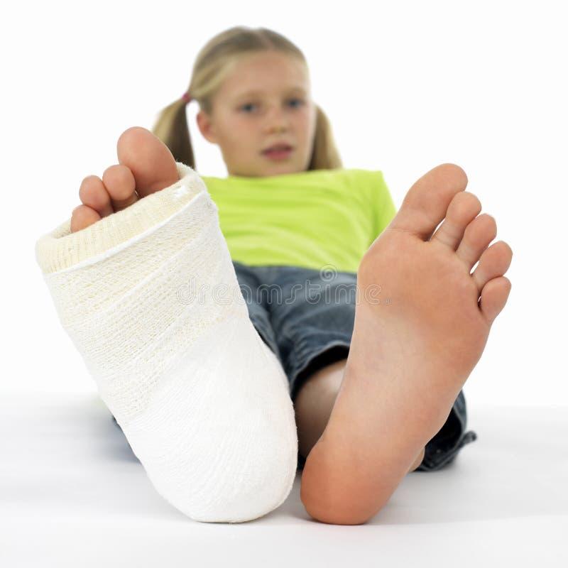 Girl with a broken leg royalty free stock photo