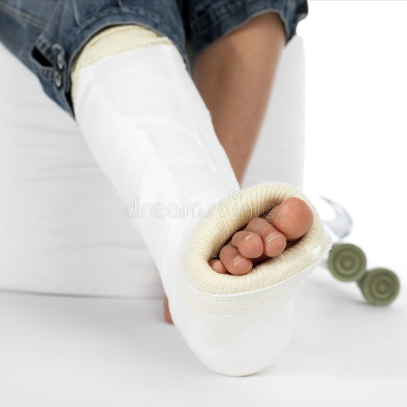 Girl with a broken leg royalty free stock photography