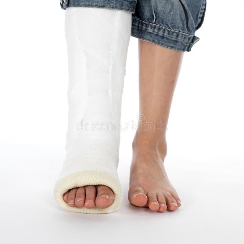 Girl with a broken leg royalty free stock photos