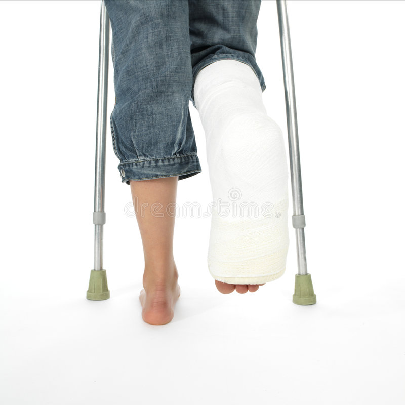 Girl with a broken leg walking on crutches royalty free stock photos