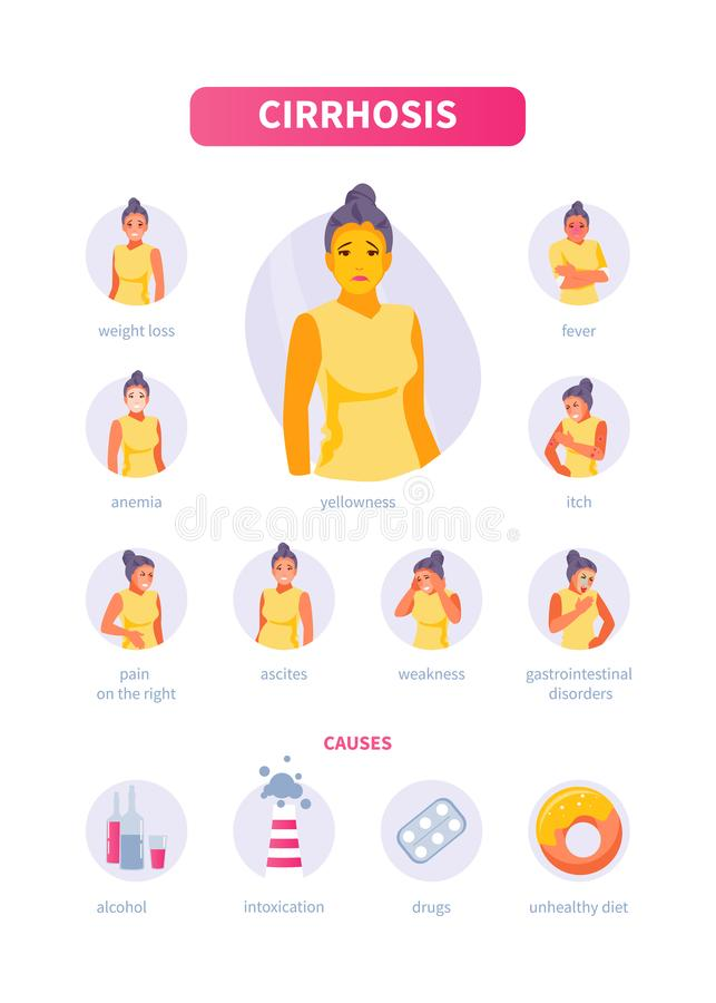Symptoms and causes of cirrhosis. Girl character with symptoms and causes of cirrhosis. medical vector infographics, poster vector illustration