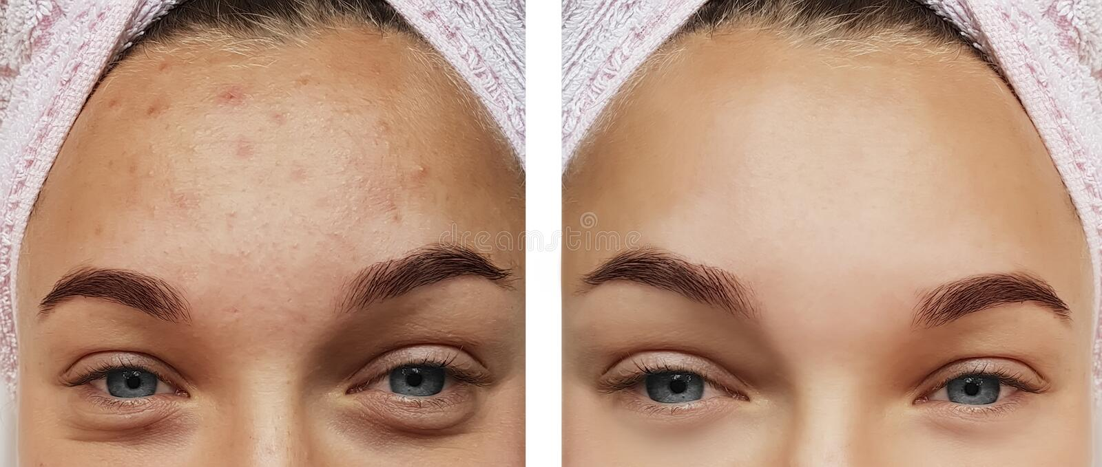 Girl eye treatment closeup , removal before and after procedures, therapy acne. Girl eye treatment before and after procedures, acne therapy closeup removal stock photo