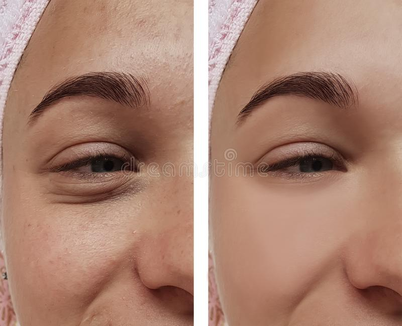 Girl eye treatment, before and after procedures, therapy acne royalty free stock photos