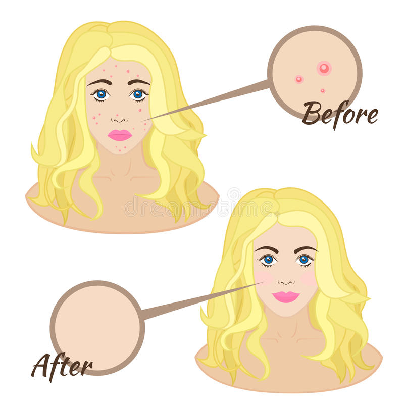 Girl face with acne. Skin acne clear skin before and after vector illustration