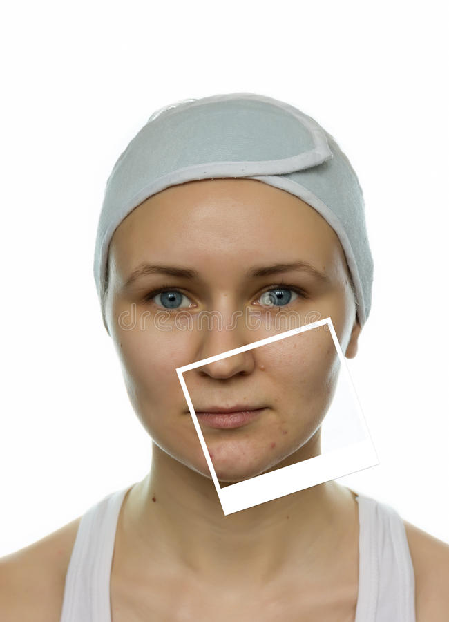 Before and after acne therapy stock image