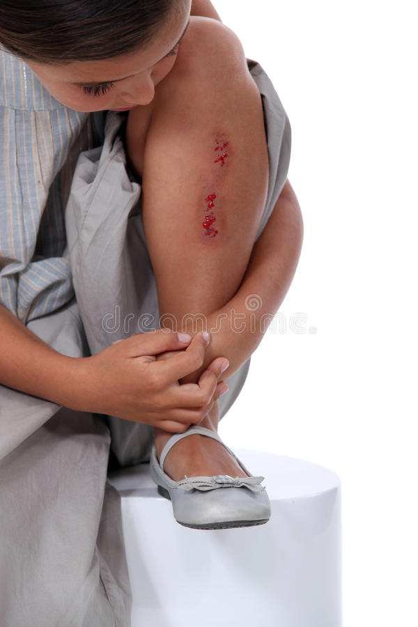 Girl with grazed leg royalty free stock images