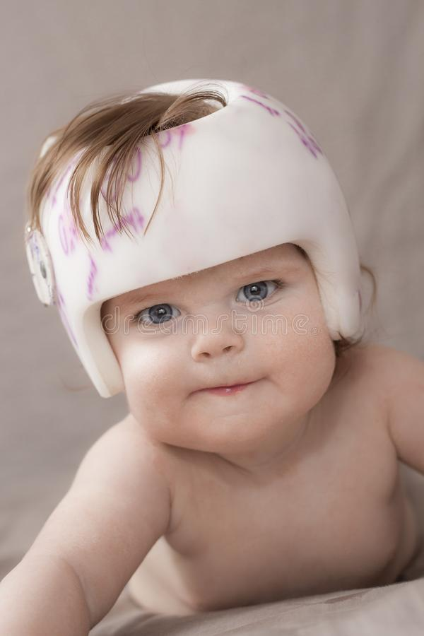 Girl with a helmet. Girl wearing her helmet to treat Plagiocephaly royalty free stock photo