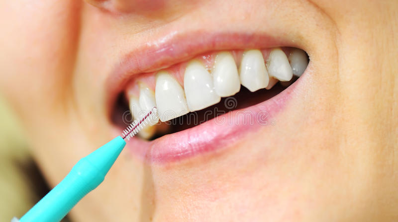 Girl with Interdental Brushes. Details on teeth royalty free stock photo
