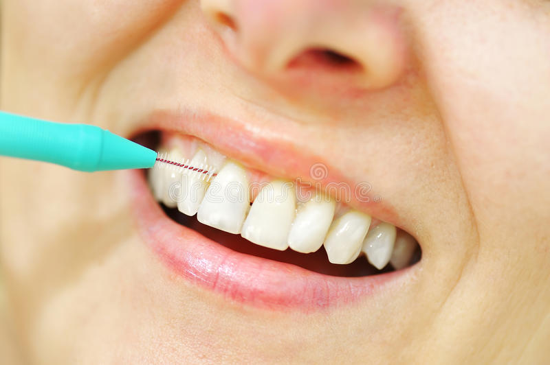 Girl with Interdental Brushes. Details on teeth stock image