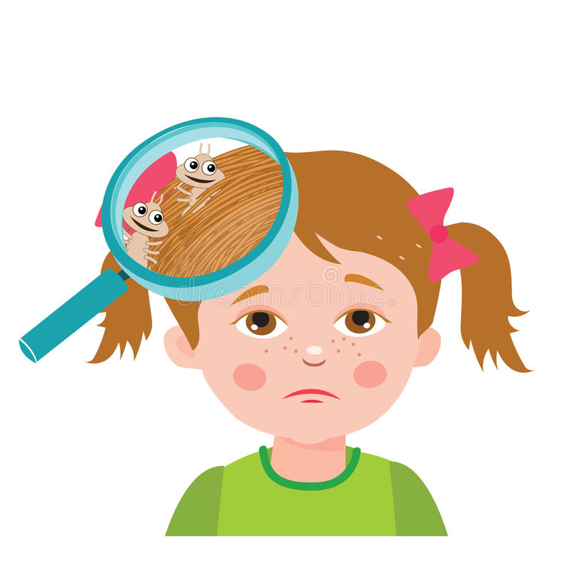 Girl with lice. Magnifying glass close up of a head. Vector illustration. Dirty head. Dirty hair. Infection. stock illustration