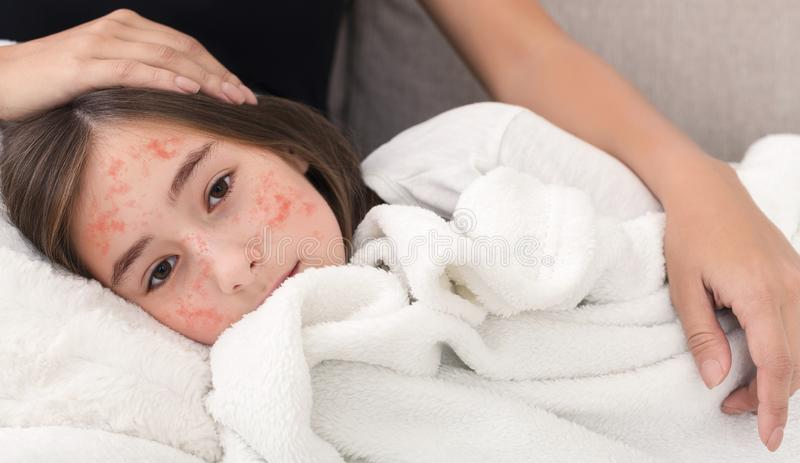 Girl With Measles Virus Lying On Mother Knees. Mom Stroking Her Daughter stock photos