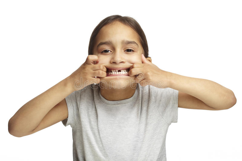 Girl with missing front tooth royalty free stock photos