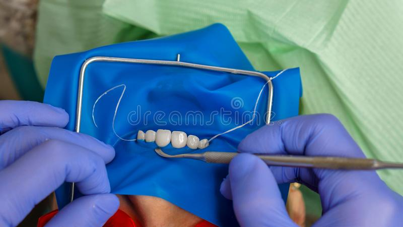 Girl patient in dental clinic. Dentist makes inspection of girl patient. Dentistry. Dental expander for mouth. Fixing gums. Dental clinic. Health care stock photography