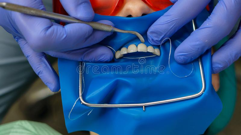 Girl patient in dental clinic. Dentist makes inspection of girl patient. Dental treatment. Dental expander for mouth. Gum fixation. Dental clinic. Health care royalty free stock photo