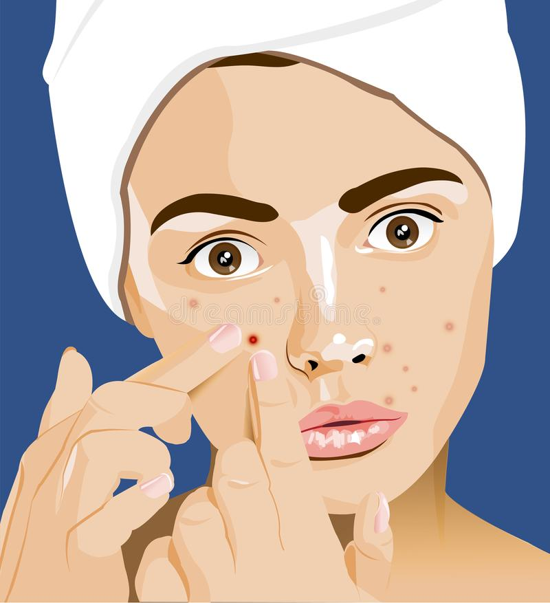 Girl with pimples, acne, facial cleansing, adolescence. Skin problems stock illustration
