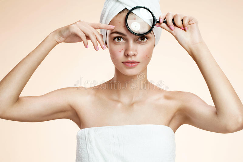 Girl with a pimply face holding magnifying glass. Woman skin care concept stock images