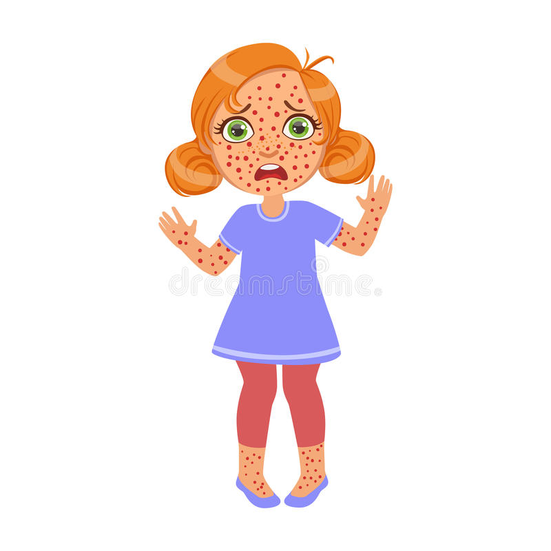 Girl With Red Pimples Rush,Sick Kid Feeling Unwell Because Of The Sickness, Part Of Children And Health Problems Series royalty free illustration