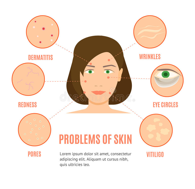 Girl Skincare Different Problems Card or Poster Vector. Girl Face Skincare Different Problems Card, Brochure or Poster Flat Design Style. Vector illustration vector illustration