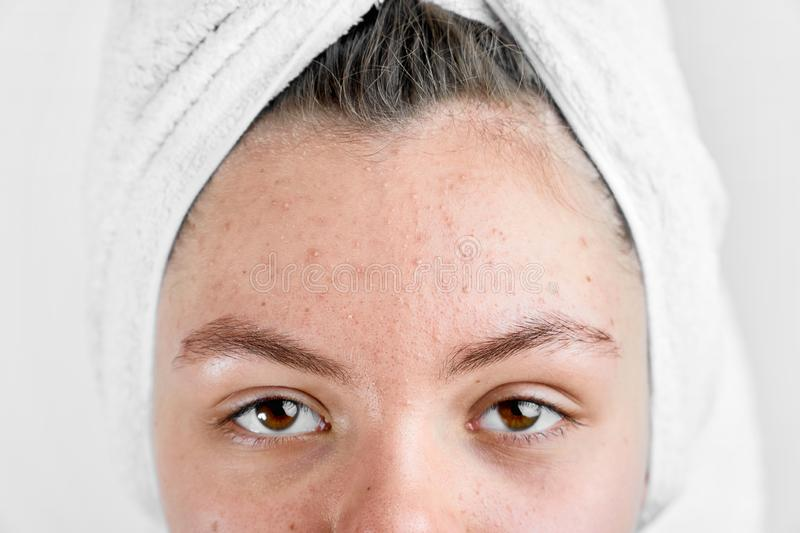 Girl after spa in white towel with acne problem skin puberty period problem face care royalty free stock image