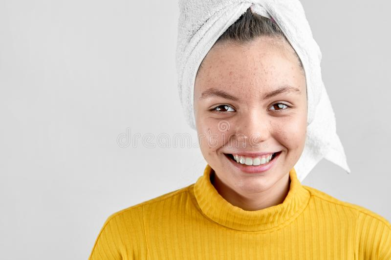 Girl after spa in white towel with acne problem skin puberty period problem face care stock images