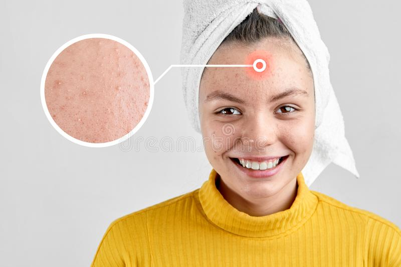 Girl after spa in white towel with acne problem skin puberty period problem face care stock photo