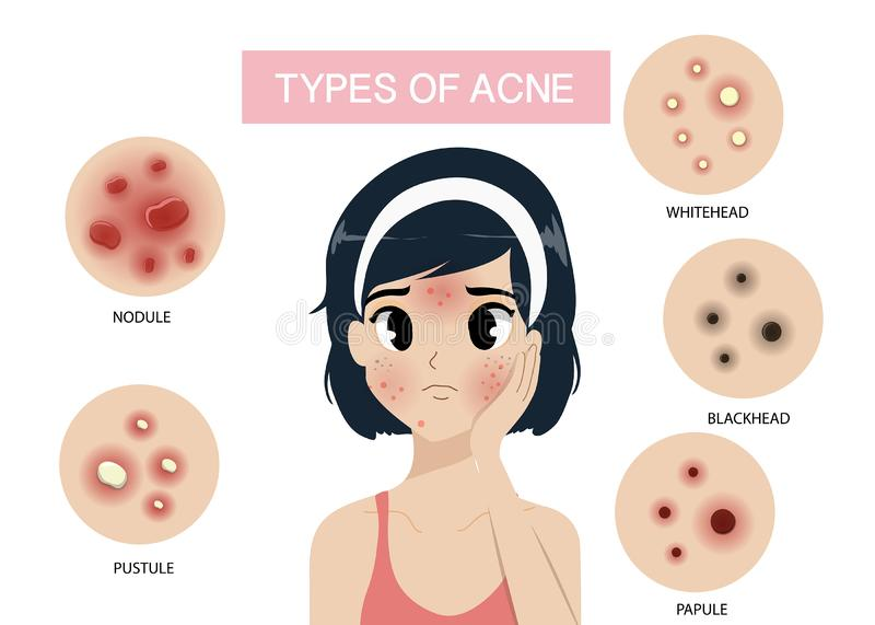 Girl and Types of acne. stock illustration