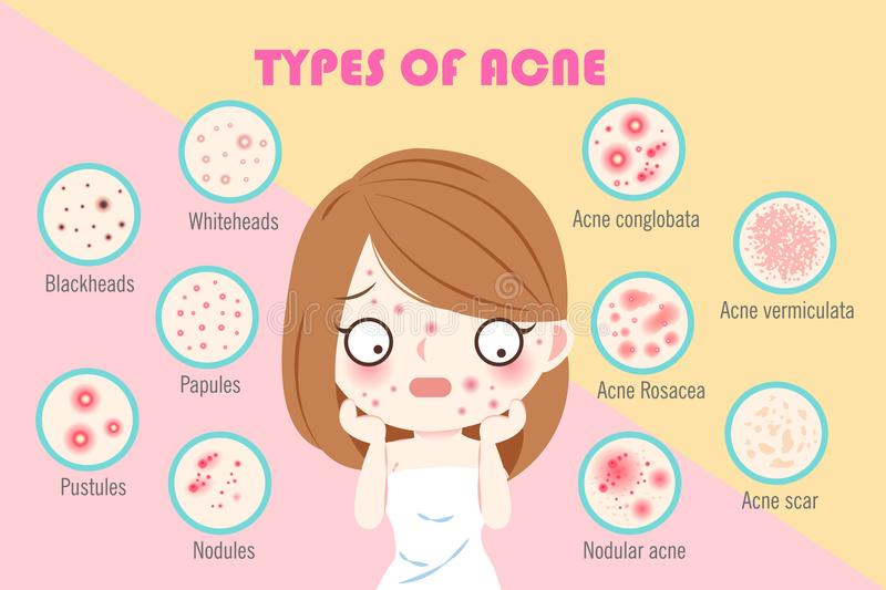 Girl with types of acne. On the pink background royalty free illustration