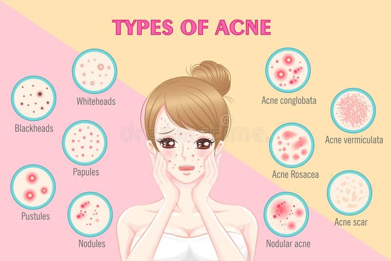 Woman with types of ance. Girl with types of acne on the pink background vector illustration