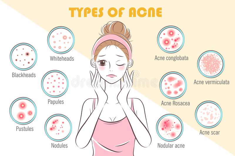 Girl with types of acne royalty free illustration