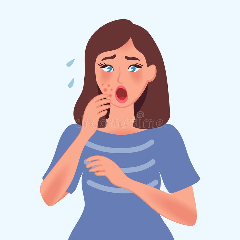 The girl is upset about the acne on her face. She`s desperate, upset, and crying. Dermatological problems. Fungal diseases, allerg royalty free stock photo