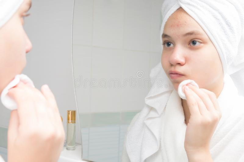 Girl in a white coat rubs her face with a cotton swab in front of a mirror in the bathroom royalty free stock photography