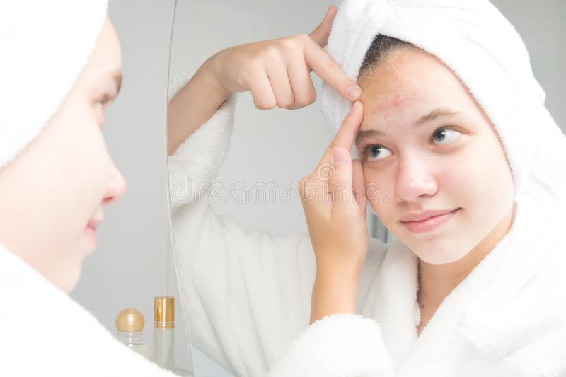 Girl in a white robe squeezes acne on the forehead with her hands in the bathroom in front of the mirror stock photos