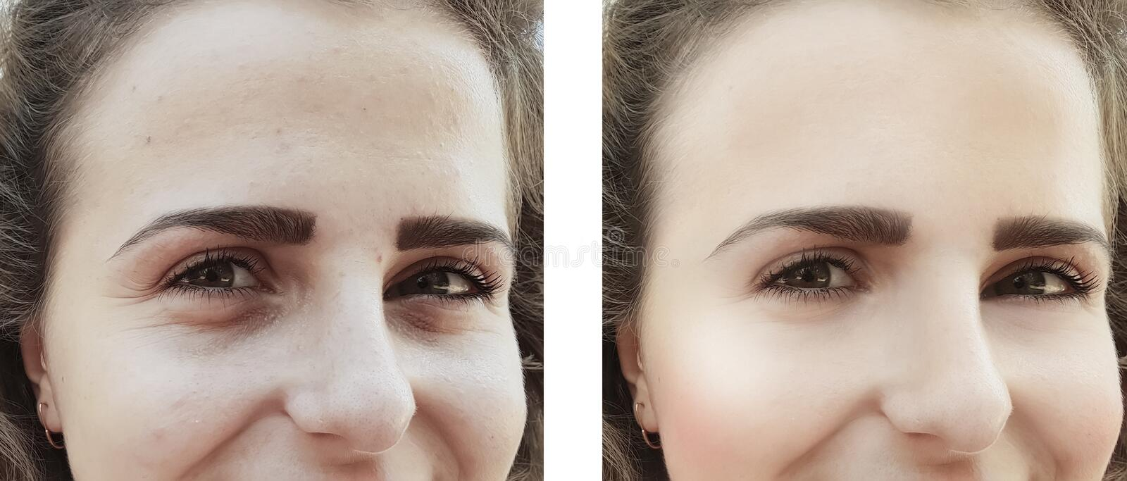 Girl wrinkles eyes before after procedures bags correction royalty free stock photos