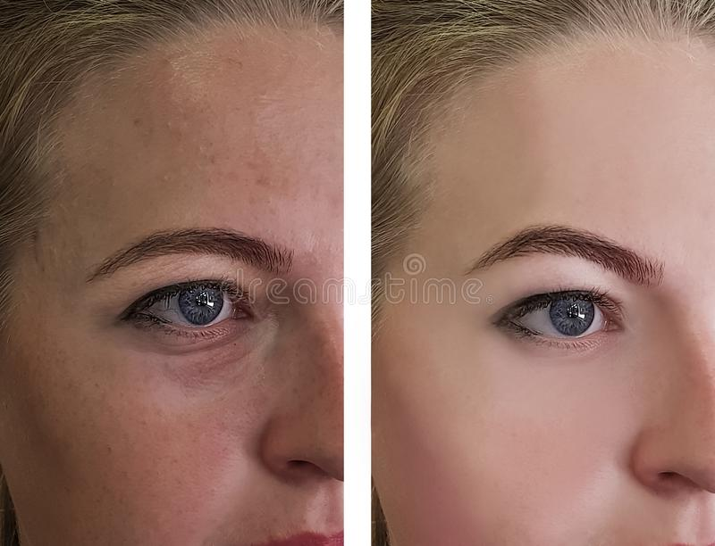 Girl wrinkles eyes before and after treatments royalty free stock photos