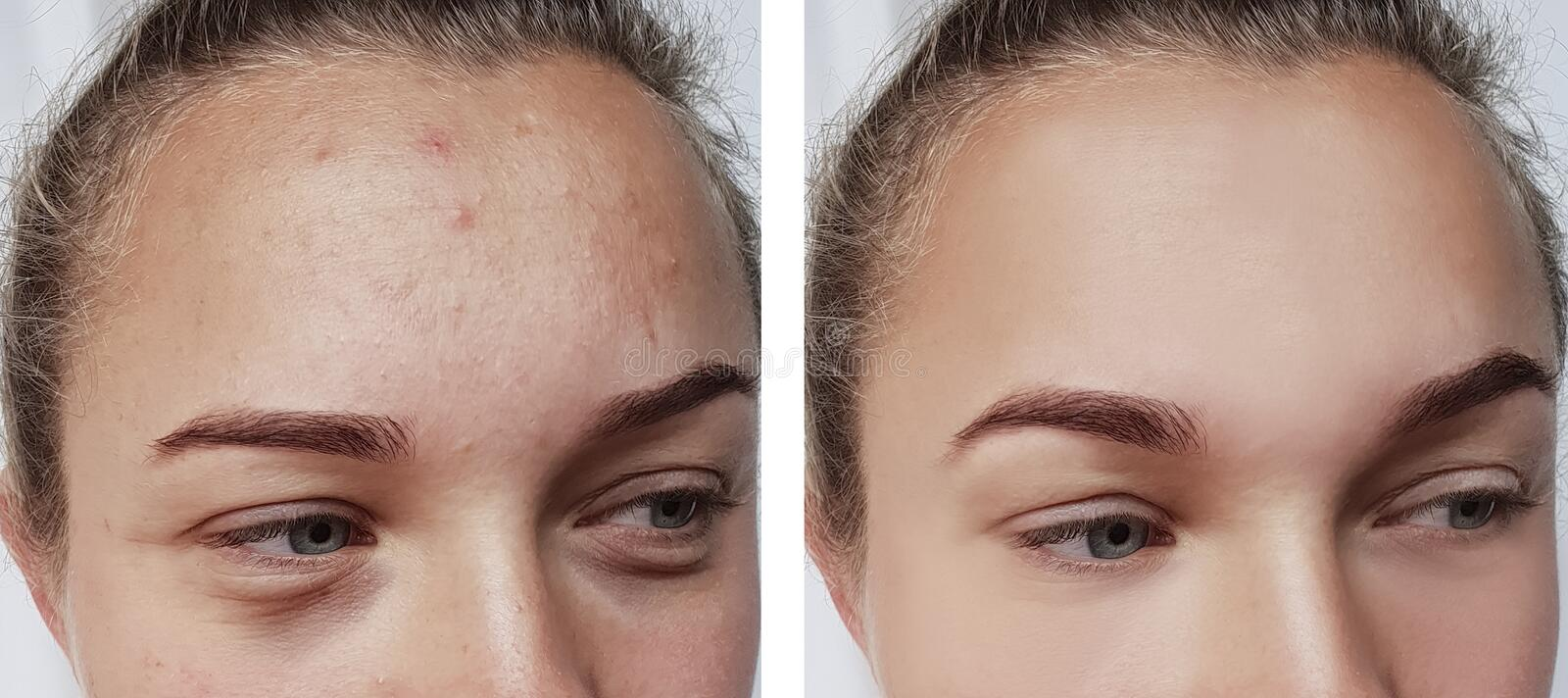 Girl wrinkles eyes before and after treatments skin removal bags royalty free stock photos