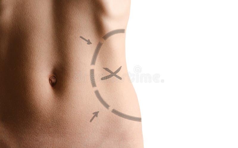 Giro vita femminile circa per effettuare liposuction fotografia stock
