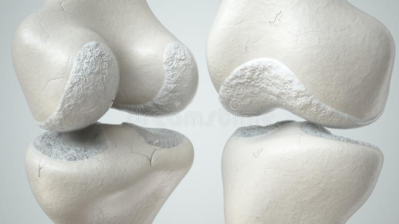 Giunto di ginocchio con perdita della cartilagine dovuto la rappresentazione anteriore e retro- 3D di Arthose, royalty illustrazione gratis