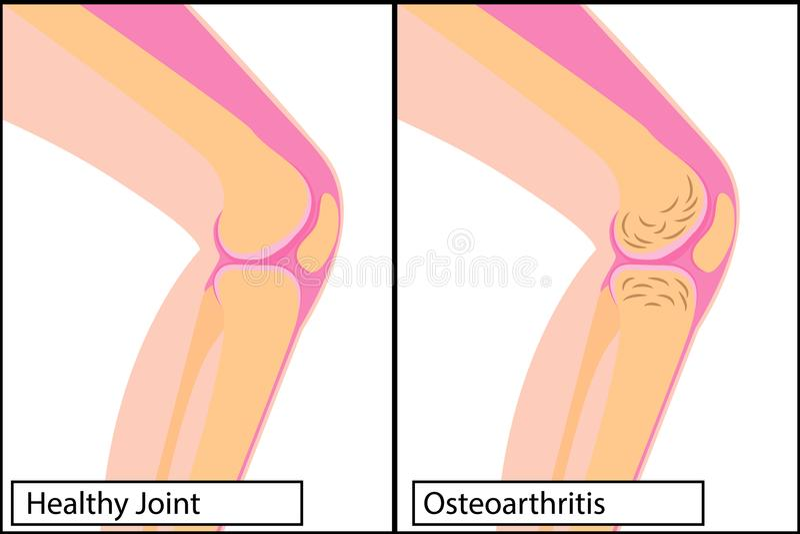 Giunto di ginocchio sano ed illustrazione medica di vettore di osteoartrite illustrazione vettoriale