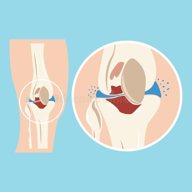 Giunto di ginocchio umano nocivo Lesioni della cartilagine osteoartrite Malattia del sistema osteomuscolare illustrazione vettoriale