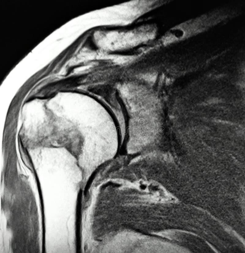 Giusto esame chirurgico omerale di mri di frattura del collo illustrazione di stock
