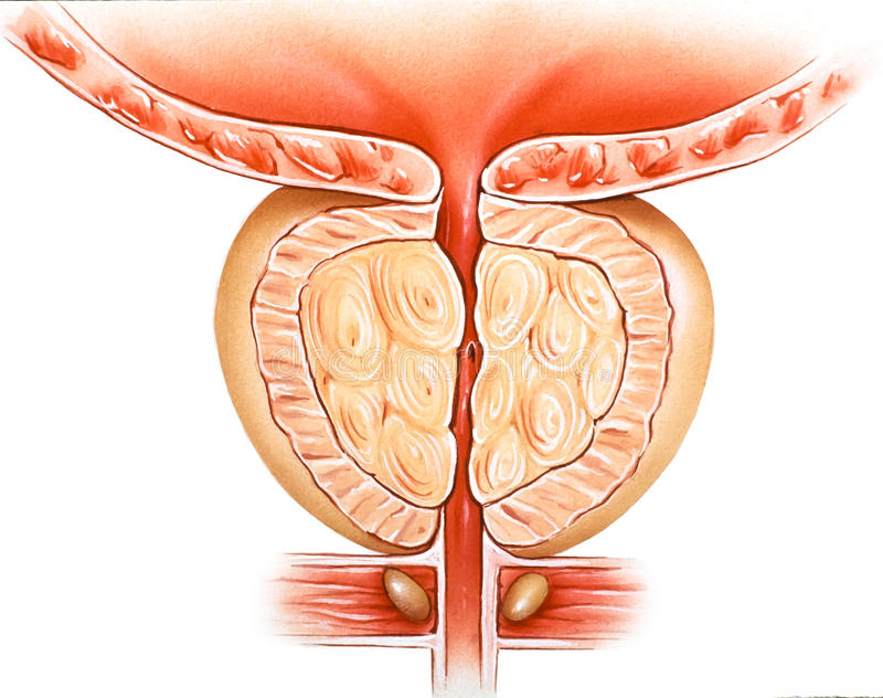 Glándula de próstata - hiperplasia prostática benigna BPH ilustración del vector