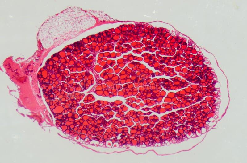 Glándula de tiroides anthropotomy médica de la ciencia imagen de archivo libre de regalías