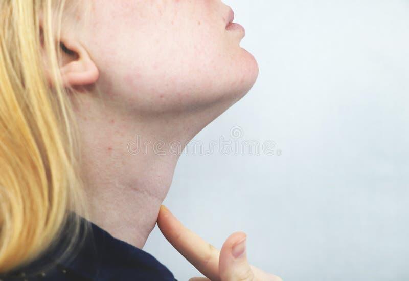 Glándula tiroides Retrato del primer de la mujer rubia joven enferma linda en el top blanco que tiene garganta dolorida, llevando imagen de archivo