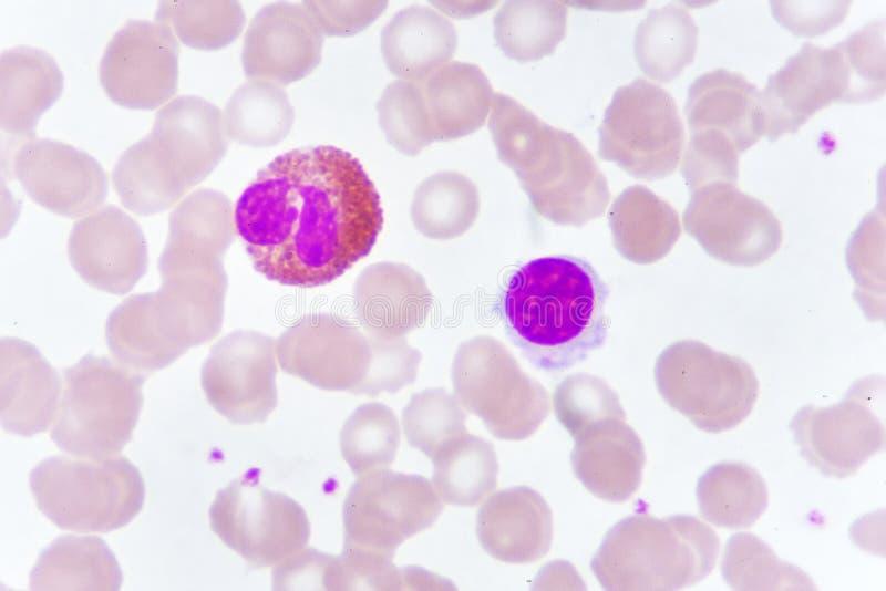 Glóbulos blancos en mancha de la sangre imagen de archivo libre de regalías
