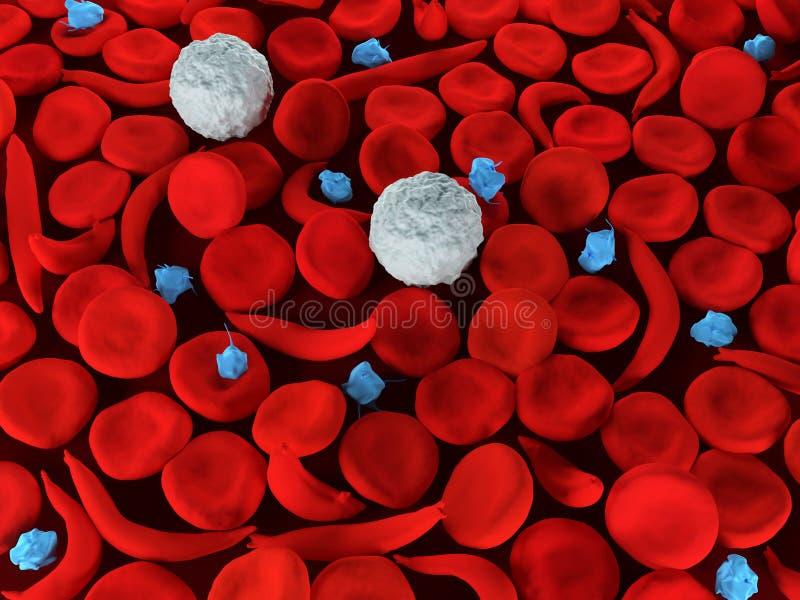 Glóbulos da anemia da célula falciforme ilustração do vetor