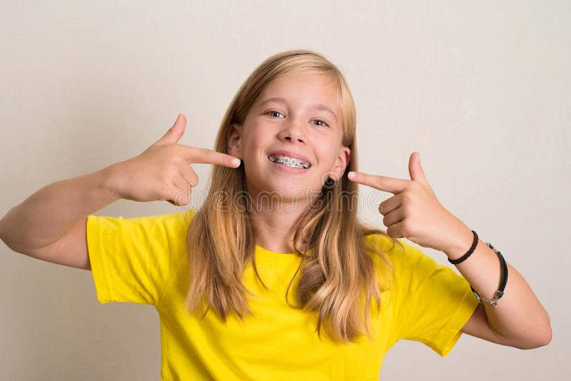Glückliches jugendlich Mädchen im gelben T-Shirt, das ihre zahnmedizinische Klammer zeigt stockbild
