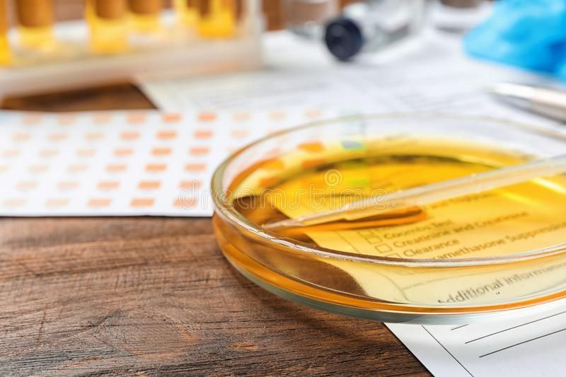 Glass dish with urine on table. Urology concept. Glass dish with urine sample on table. Urology concept royalty free stock images