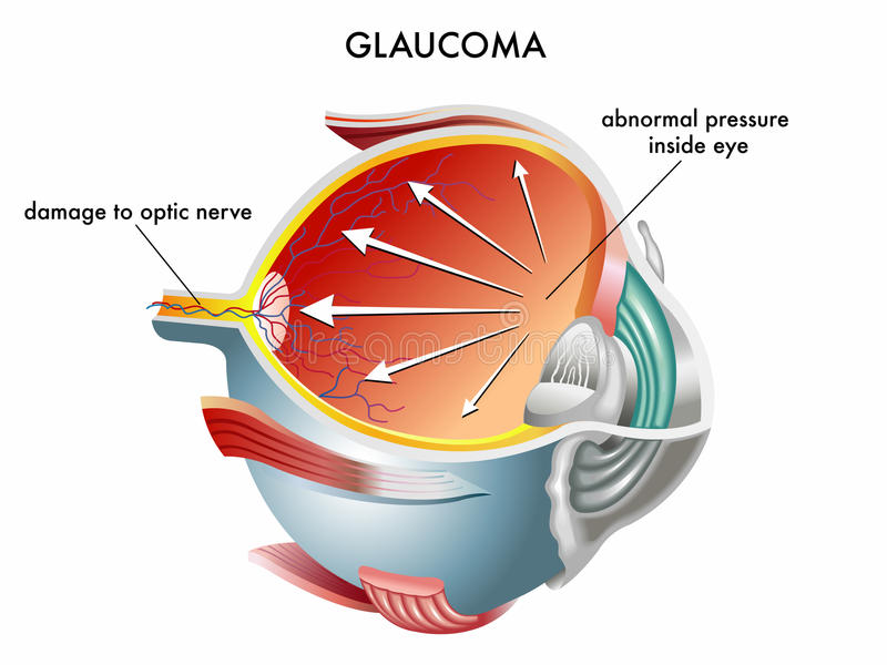 Glaucoma. Illustration of the causes of glaucoma royalty free illustration